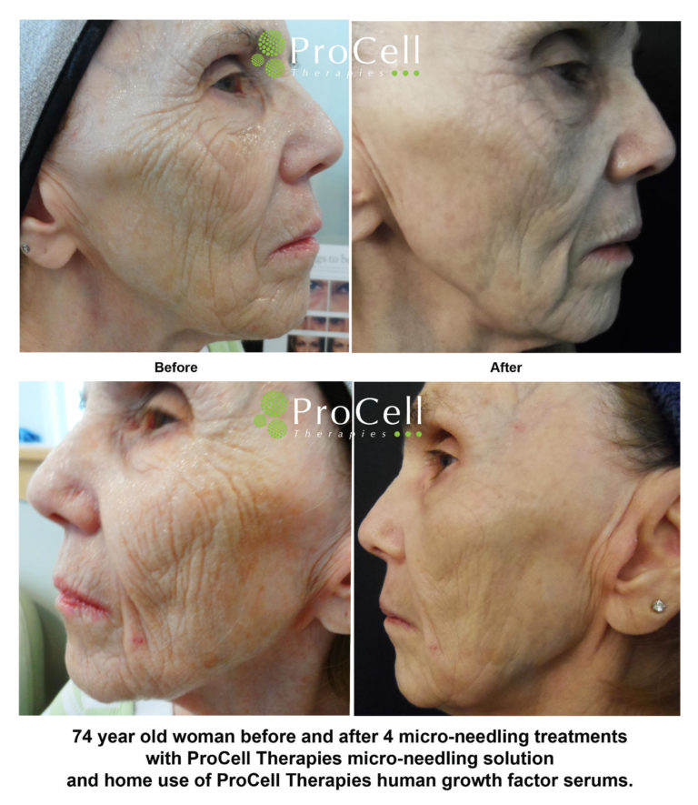Microchanneling initiates the skin's repair process to naturally produce collagen and elastin, which will smooth fine lines, wrinkles, scars and stretch marks.