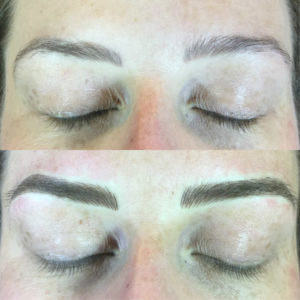 microblading-before-after-2018-03-E