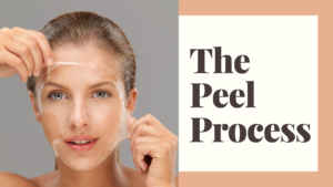 What is a Chemical Peel?
